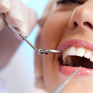 dental treatment to consider